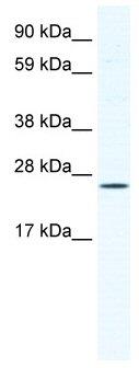 Western blot - BRF1 antibody (ab49122)