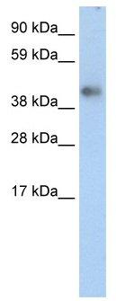 Western blot - ZNF620 antibody (ab49127)