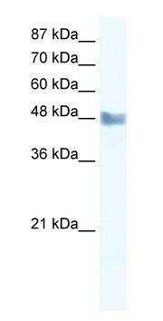 Western blot - MAP3K8 antibody (ab49152)