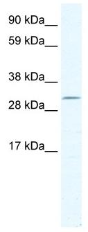 Western blot - DMRT2 antibody (ab49181)