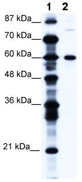Western blot - Anti-CNOT3 antibody (ab49186)