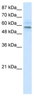 Western blot - MGC4618  antibody (ab49189)
