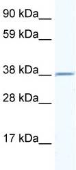 Western blot - RNF130 antibody (ab49218)
