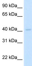 Western blot - LDB2 antibody (ab49224)