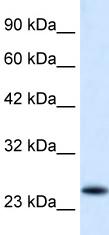 Western blot - VPS24 antibody (ab49266)