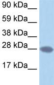 Western blot - TCEA2 antibody (ab49276)