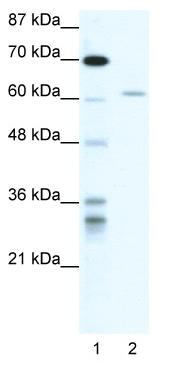 Western blot - ZNFN1A4 antibody (ab49285)