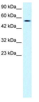 Western blot - Lipase antibody (ab49288)
