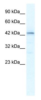 Western blot - LOC93349 antibody (ab49294)