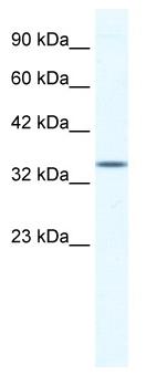 Western blot - ZNF589 antibody (ab49299)