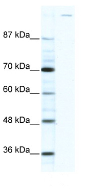 Western blot - Gli1 antibody (ab49314)