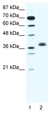 Western blot - BHLHB5 antibody (ab49315)