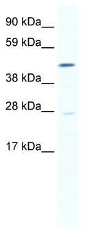 Western blot - SmyD1 antibody (ab49327)