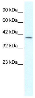 Western blot - Gbx2 antibody (ab49331)