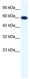 Western blot - DDX6 antibody (ab49336)