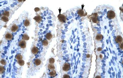 Immunohistochemistry (Paraffin-embedded sections) - ZNF70 antibody (ab49339)