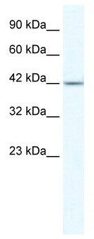 Western blot - ZNF70 antibody (ab49339)