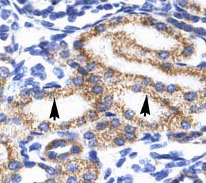 Immunohistochemistry (Paraffin-embedded sections) - MEIS2 antibody (ab49346)