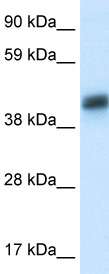 Western blot - Asialoglycoprotein receptor 1 antibody (ab49355)