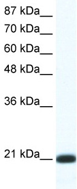 Western blot - QRX antibody (ab49371)