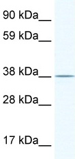 Western blot - EI2BL antibody (ab49416)