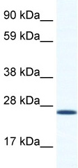 Western blot - BMAL1 antibody (ab49421)