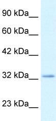 Western blot - Claudin 10 antibody (ab49423)