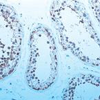 Immunohistochemistry (Paraffin-embedded sections) - MKK4 antibody [7A6] (ab49466)
