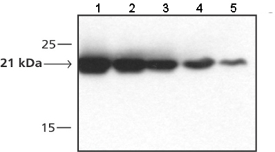 Western blot - Dihydrofolate reductase (DHFR) antibody (ab49881)