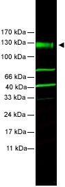 Western blot - FANCA antibody (ab5063)