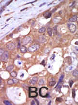 Immunohistochemistry (Formalin/PFA-fixed paraffin-embedded sections) - PKC mu antibody (ab5283)