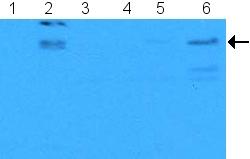 Western blot - E2F1 (phospho S364) antibody (ab5391)