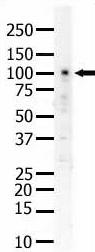 Western blot - Eph receptor A5 antibody (ab5397)