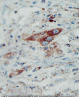 Immunohistochemistry (Formalin-fixed paraffin-embedded sections) - EphB2 antibody (ab5418)