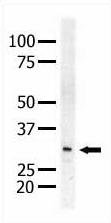 Western blot - MEK3 antibody (ab5428)