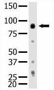 Western blot - PI 3 Kinase p85 beta antibody (ab5456)