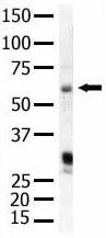 Western blot - PIP5K1 alpha antibody (ab5466)