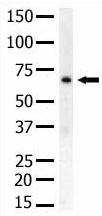 Western blot - PIP5K1 beta antibody (ab5468)