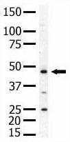 Western blot - PIP5K2 alpha antibody (ab5469)