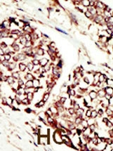 Immunohistochemistry (Formalin/PFA-fixed paraffin-embedded sections) - ErbB 3 antibody (ab5470)
