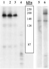 - VEGF Receptor 2 (phospho Y1054) antibody (ab5472)