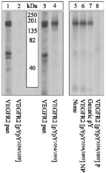 Western blot - VEGF Receptor 2 (phospho Y1054 + Y1059) antibody (ab5473)