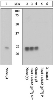 - RAC1 + Cdc42 (phospho S71) antibody (ab5482)
