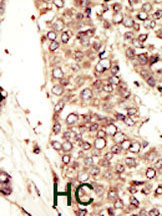 Immunohistochemistry (Formalin/PFA-fixed paraffin-embedded sections) - IGF1 Receptor antibody (ab5497)
