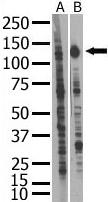 Western blot - Insulin Receptor R antibody (ab5504)
