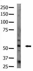 Western blot - STK33 antibody (ab5519)