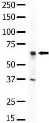 Western blot - IRAK2 antibody (ab5523)