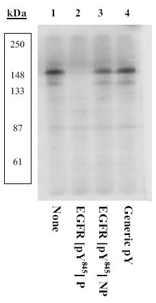 Western blot - EGFR (phospho Y845) antibody (ab5636)