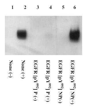 Western blot - EGFR (phospho Y992) antibody (ab5638)