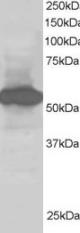 Western blot - Anti-SIL1 antibody (ab5639)